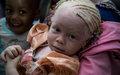 Message publié à l'occasion de la Journée internationale de sensibilisation à l'albinisme, le 13 juin 2018